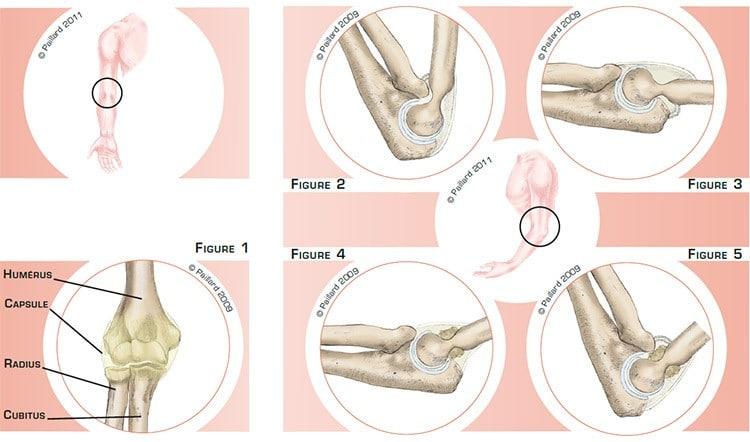 Qu'est-ce qu'une raideur du coude? Définition par dr Paillard: Chirurgien orthopédique