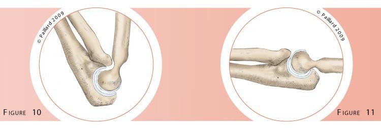 Chirurgie du coude (Arthrolyse du coude) à Paris par docteur Paillard