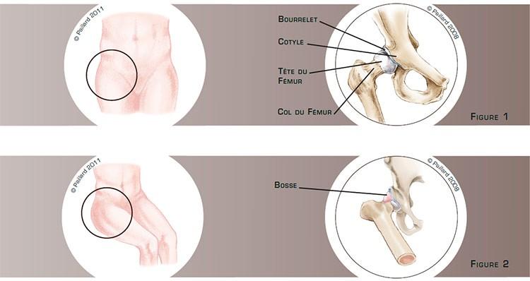 Définition d'un conflit de hanche (Arthrolyse de hanche) par docteur Paillard: Chirurgien orthopédique