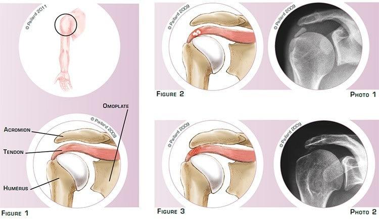 Qu'est ce qu'une calcification des tendons de l'épaule? Définition par dr Paillard