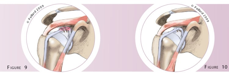 Chirurgie du biceps au niveau de l'épaule à Paris par Dr Paillard