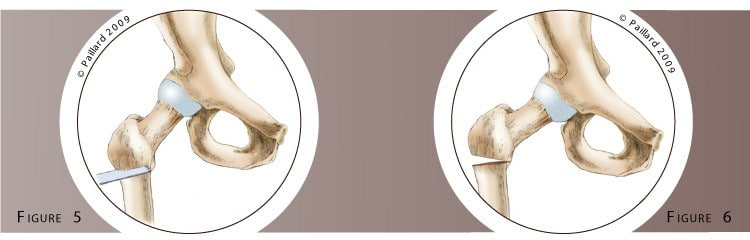 Chirurgie de la hanche (Chirurgie conservatrice) à Paris - Dr Paillard