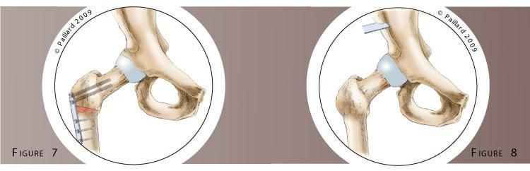 Traitement d'une dysplasie de la hanche à Paris - Dr Paillard