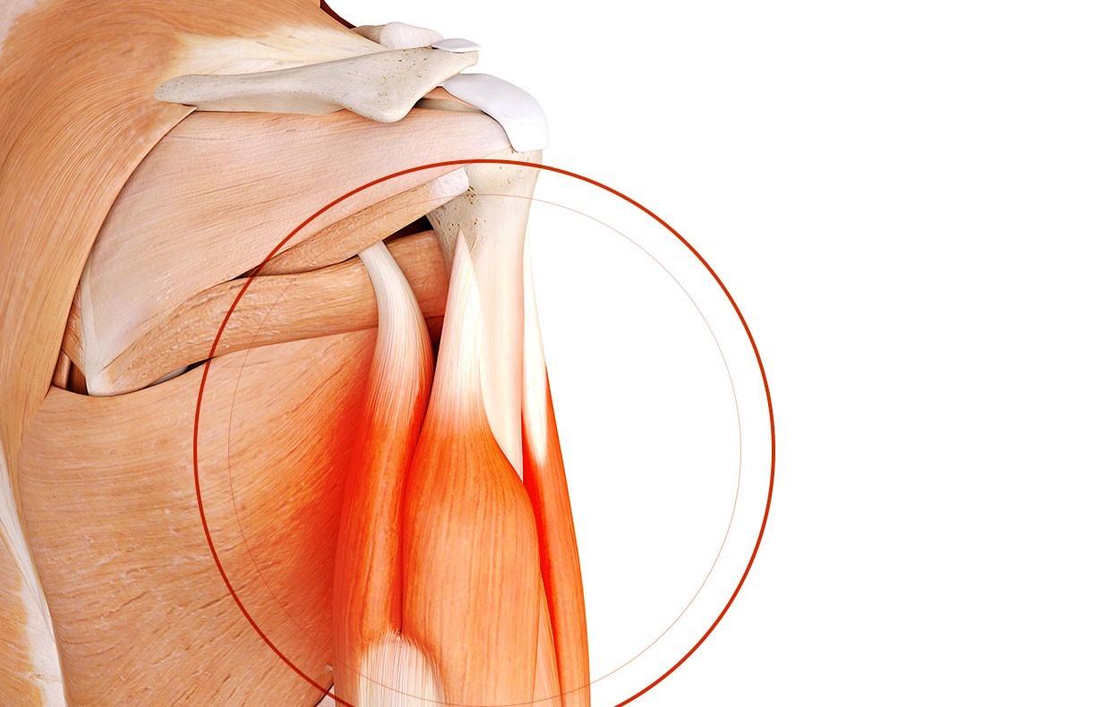 Chirurgie de l'épaule à Paris: Chirurgie du biceps - Dr Paillard, Chirurgien orthopédique