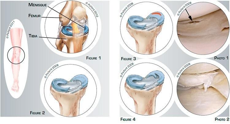 Qu'est ce qu'une lésion méniscale? Définition par docteur Paillard, Chirurgien orthopédique