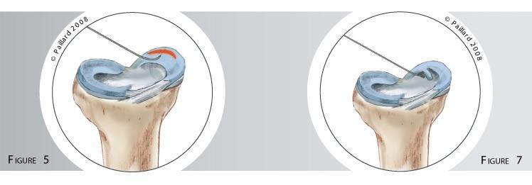 Chirurgie méniscale: L'opération de la lésion méniscale à Paris - Dr Paillard