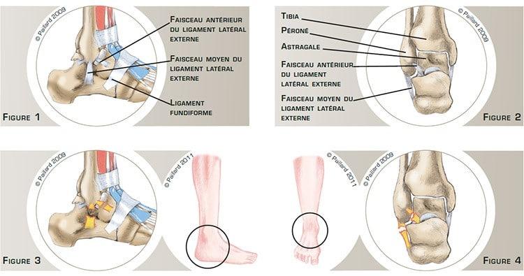 Chirurgie de la cheville à Paris: Instabilité de la cheville - dr Paillard