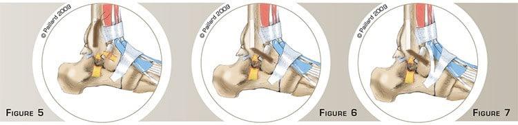 La ligamentoplastie de cheville: Chirurgie de la cheville à Paris - dr Paillard