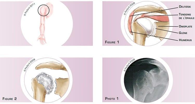 Qu'est ce qu'une arthrose de l'épaule? Définition par dr Paillard: Chirurgien orthopédique