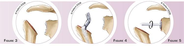 Définition d'une prothèse totale de l'épaule par dr Paillard: Chirurgien orthopédique à Paris