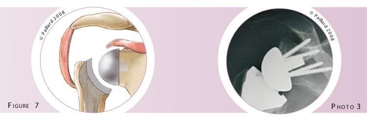 Prothèse totale de l'épaule: Chirurgie par docteur Paillard à Paris