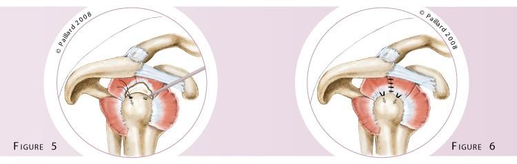 Qu'est ce qu'une réparation arthroscopique des tendons de l'épaule? Définition par dr Paillard