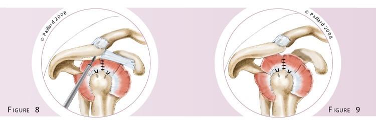 Réparation arthroscopique des tendons de l'épaule à Paris - Dr Paillard