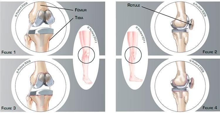 Qu'est ce qu'un descellement de prothèse du genou? Définition par dr Paillard