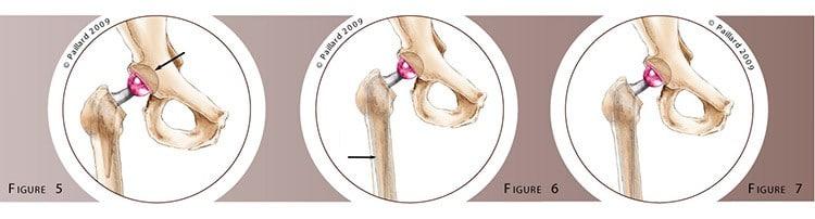 Qu'est ce qu'une reprise de prothèse de hanche? Définition par dr Paillard