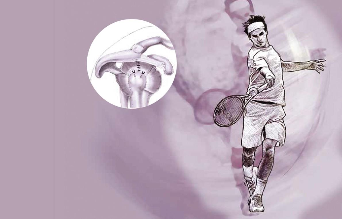 Chirurgie de l'épaule à Paris - dr Paillard: Chirurgien orthopédique