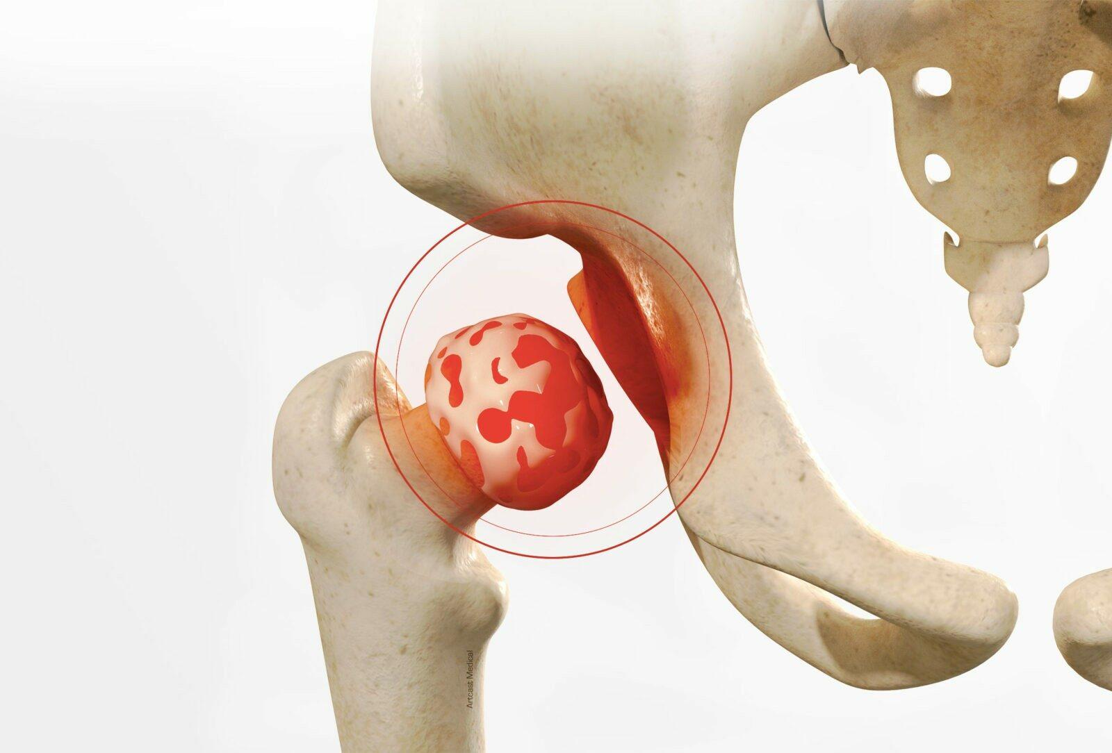 Prothèse totale de la hanche - dr Paillard à Paris Chirurgien orthopédique à Paris