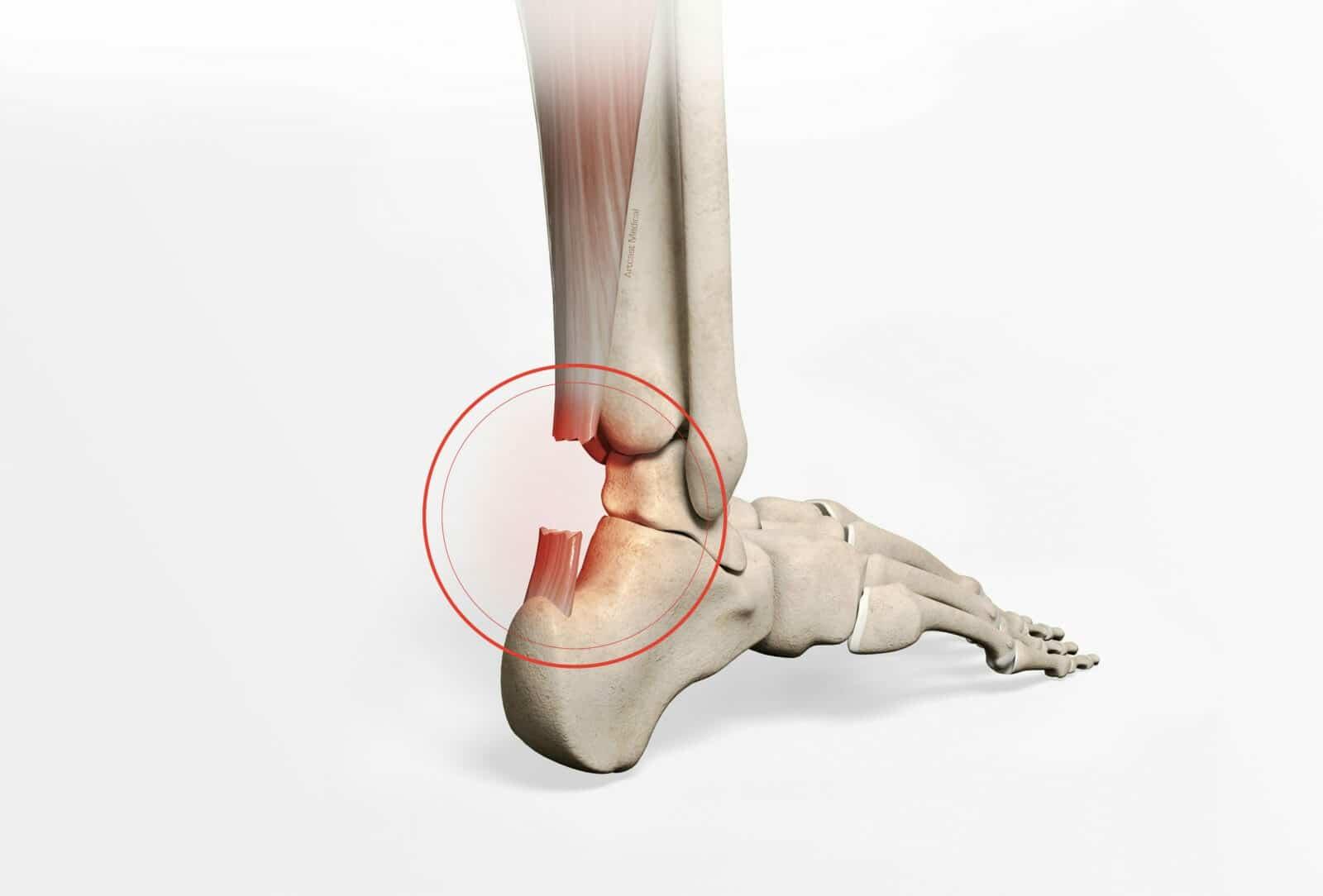 Réparation du tendon d'achille - Chirurgie par dr Paillard à Paris