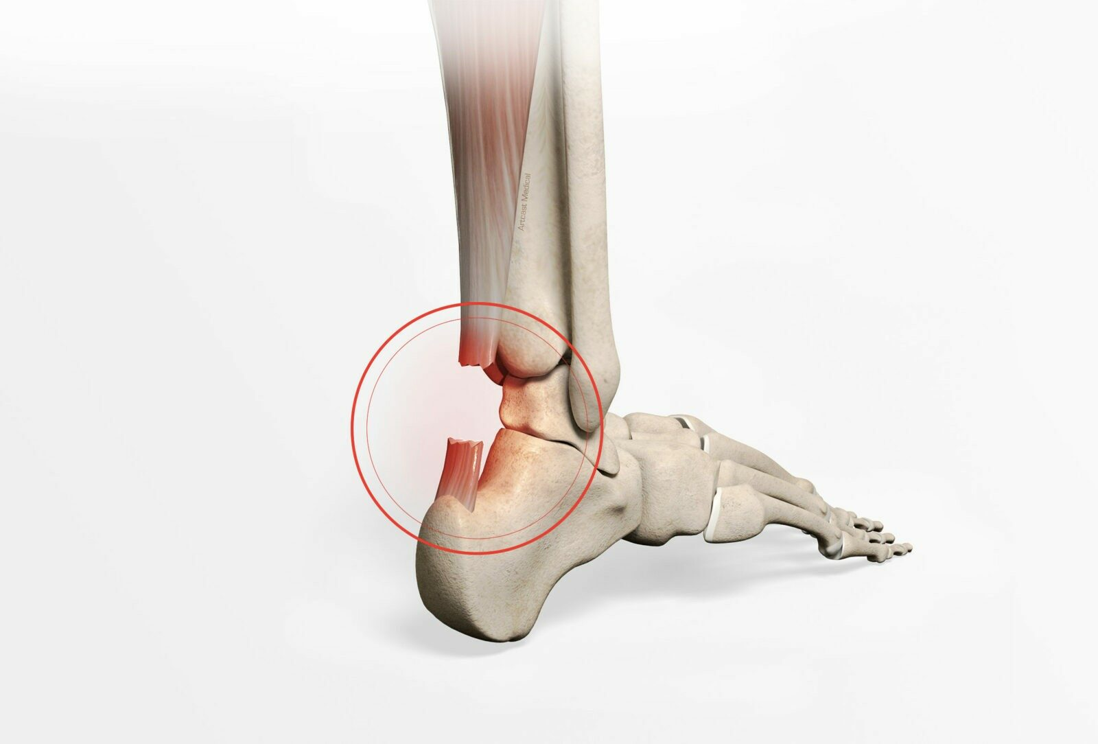 Chirurgie de la cheville à Paris: Réparation du tendon d'Achille - docteur Paillard