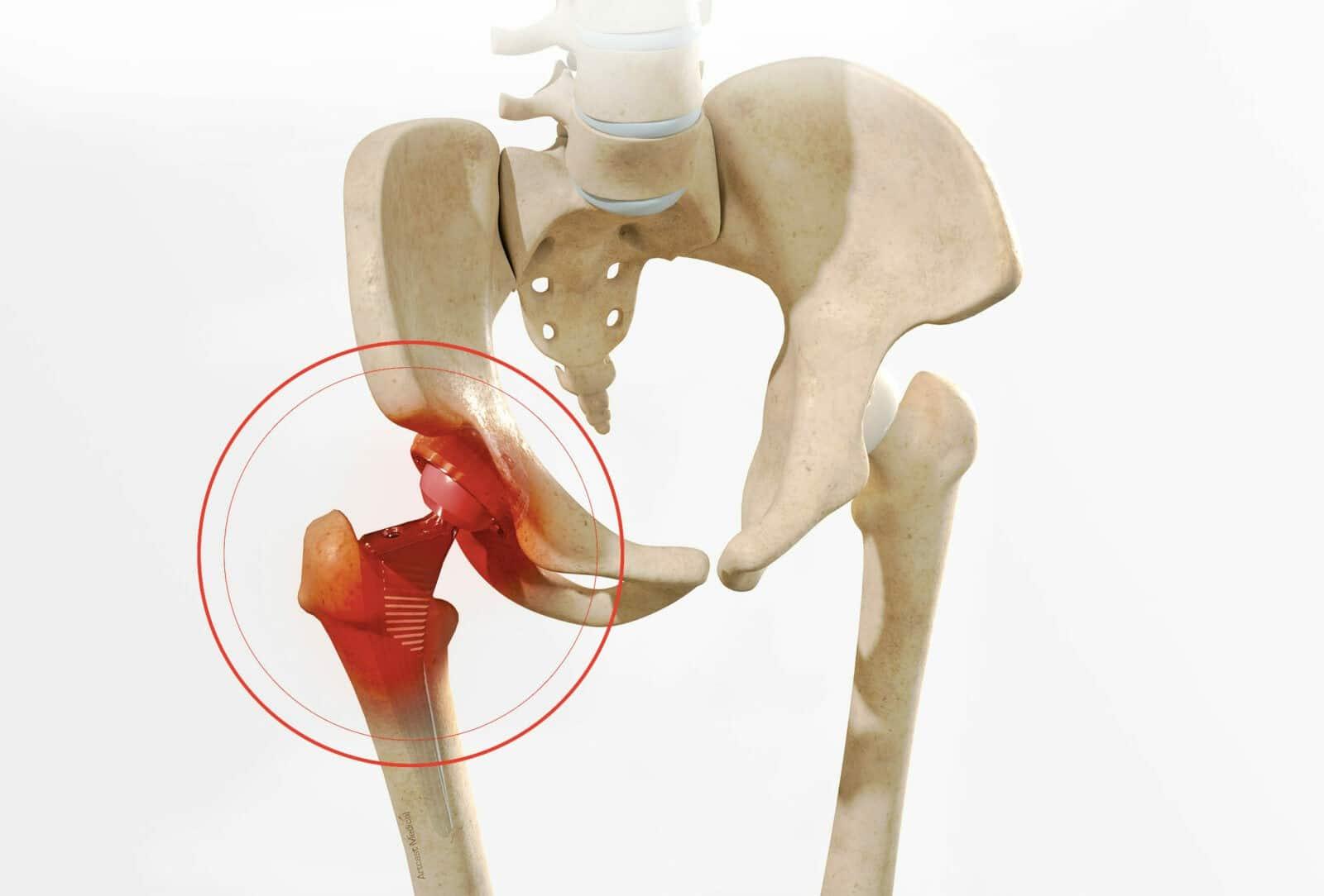 Prothèse totale de la hanche: La reprise de prothèse de hanche par dr Paillard à Paris